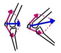 Anpressdruck der Kniescheibe (blau) bei gleicher Muskelkraft (rot) - (Fussball, Knie, Knieschmerzen)