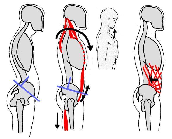 Welche Übungen helfen gegen ein Hohlkreuz? (Schmerzen)