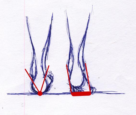 Bild 1: links: Fersenaufsatz. rechts: Vorfußaufsatz - (Füße, umgeknickt)