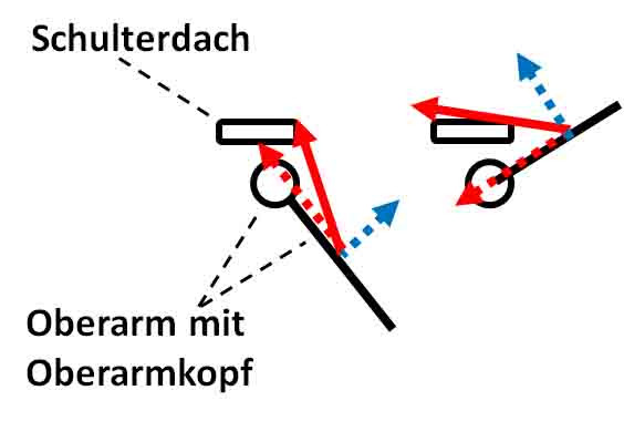 Kräftezerlegung am Schultergelenk - (Schulterschmerzen, Calisthenics)