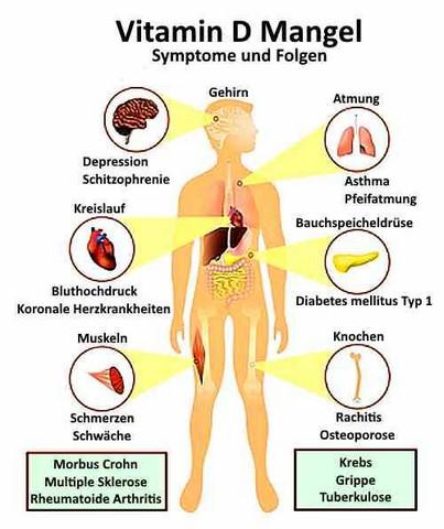 Ursache für Mangelerscheinungen - (laufen, Ernährung, Lauftraining)