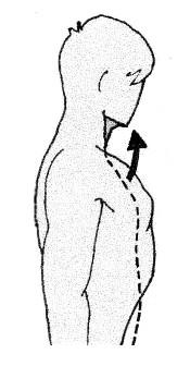 Bild 3 - (Hohlkreuz, körperhaltung, Rundruecken)