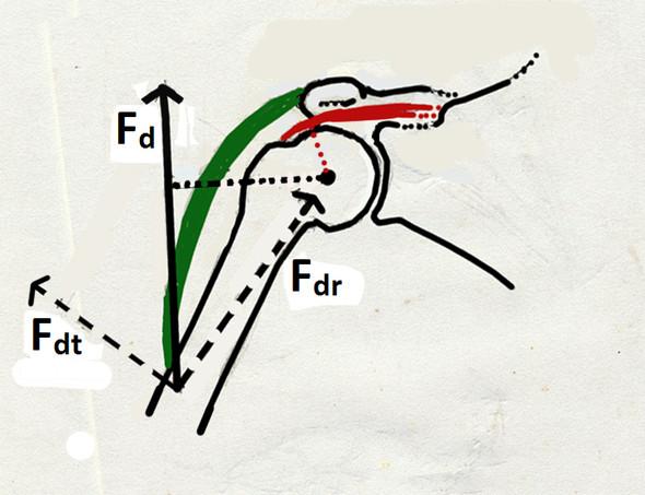 Schultergelenk von sagittal (Rabenschnabelbein weggelassen) - (Tischtennis, arm, Ruckartig)