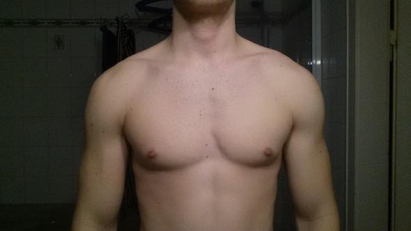 Falsches Training oder genetisch bedingte Asymmetrie (ungleichmäßige Konturen) der Brustmuskeln?