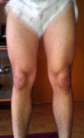 Bein nicht angespannt - (Muskelkater, Maßeaufbau, Bein abnehmen)