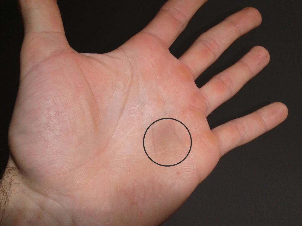 Fingerkuppen Pellen Sich