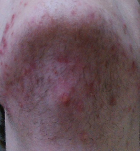 Muskelernährung bei Akne - Meine Akne - (Ernährung, Muskeln, Eiweiß)