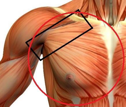 Abb. 1 Brustmuskelkater - (Muskelaufbau, Muskelkater, Brustmuskeln)
