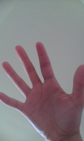 der geschwollene Finger - (Sport, Gesundheit, Verletzung)