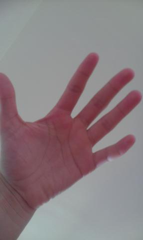 die andere,unverletzte Hand - (Sport, Gesundheit, Verletzung)