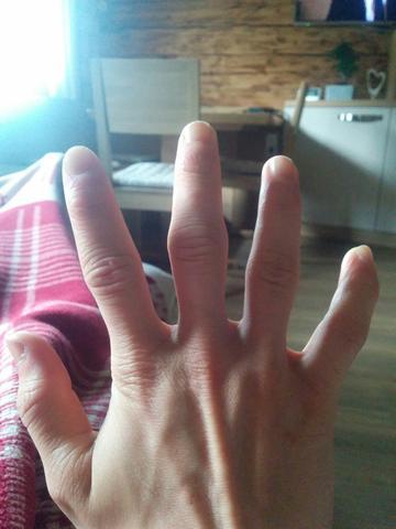 Blick an den Mittelfinger...bei beiden händen gleich:/ - (klettern, Bouldern)