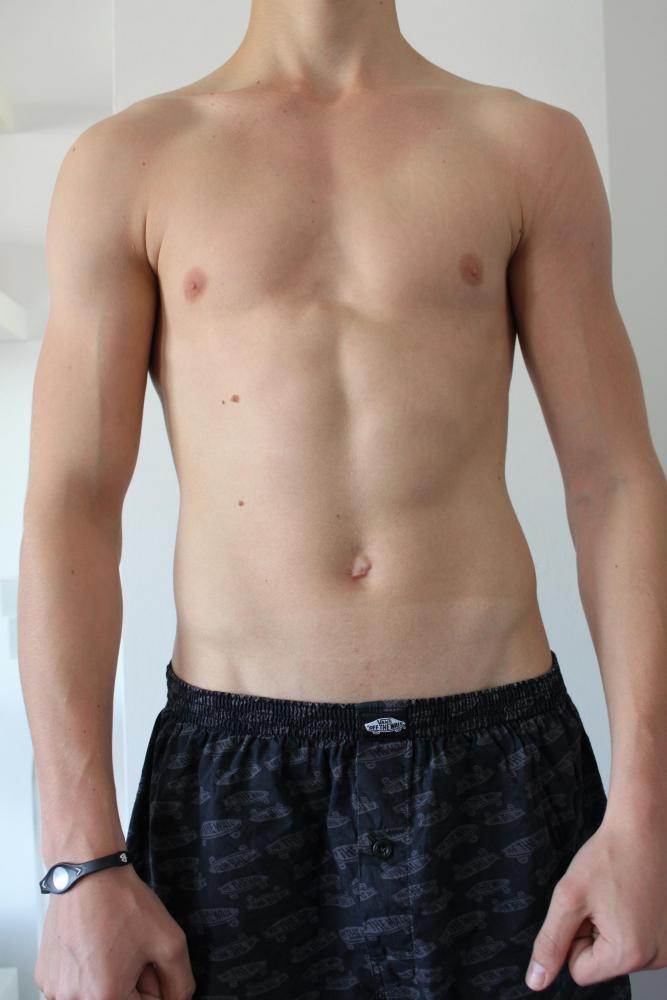 Die Operationen auf die Brust nicht die Erfolgreiche