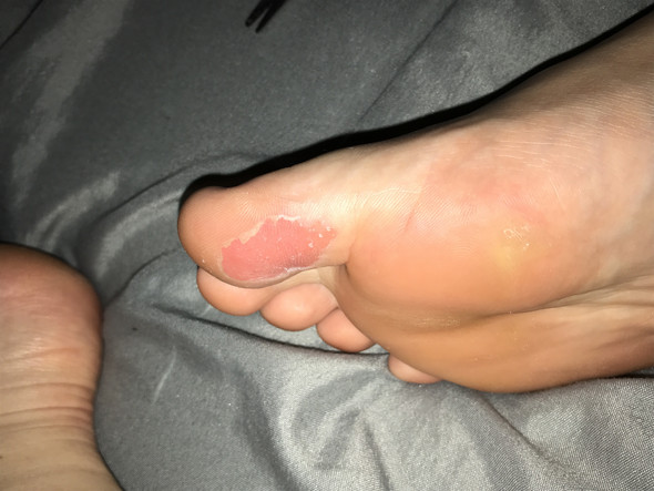 - (Handball, Füße)