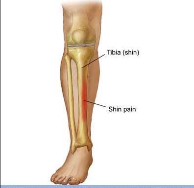 Schmerzstelle - (Fussball, Schienbein, Knochen)