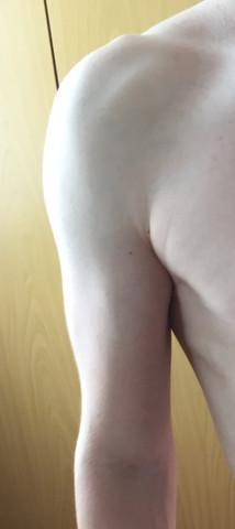 Bizeps fast garnicht, schaut von der seite sch***e aus - (Training, Muskelaufbau, Bizeps)