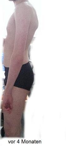 Buckel LINKS - Vor 6-4 Monaten - (Muskeln, Rücken, Oberschenkel)
