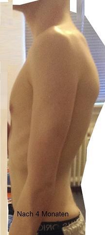 Buckel LINKS - Nach 4 Monaten Theraband-Gymnastik - (Muskeln, Rücken, Oberschenkel)