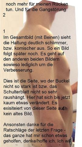 """Buckel RECHTS - Nach 4 Monaten - """"Fast """" unverändert - (Muskeln, Rücken, Oberschenkel)"""