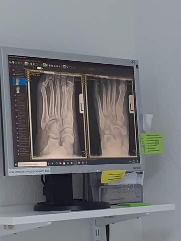 - (Füße, Röntgenbild)