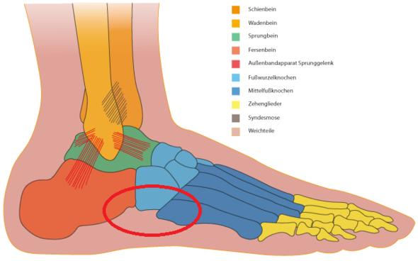 Schmerzen am Fußgelenk vom Joggen?