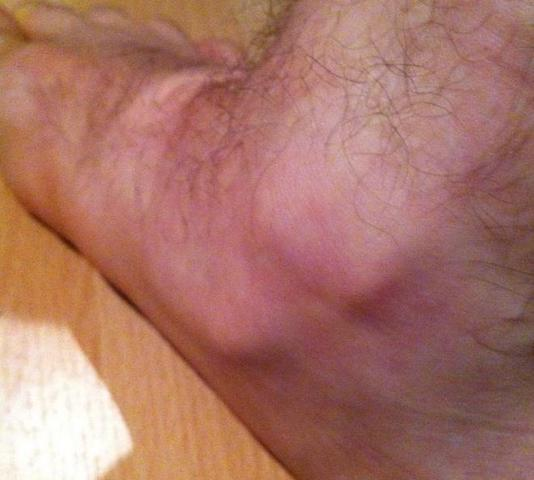 Nicht mein Fuß sieht aber so ähnlich aus! - (Sport, laufen, Verletzung)