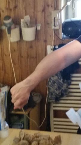 Arm - (Training, Schmerzen, Muskelkater)