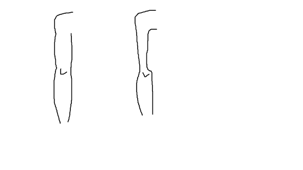 - (Muskelaufbau, Trizeps)
