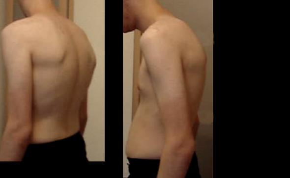 Hohlkreuz  - (Training, Muskeln, Übungen)