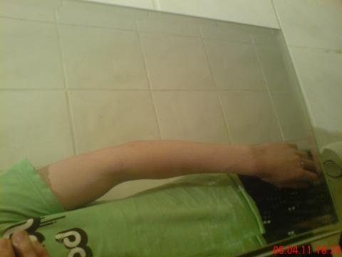 Unterarme dünne Top 10
