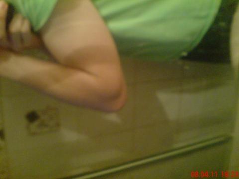 Muskelaufbau dünne arme